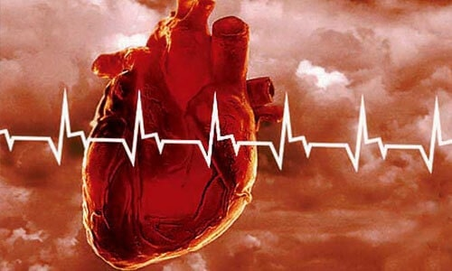 Что такое инфаркт?