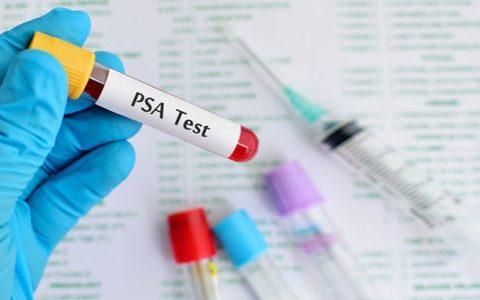 Анализ крови на ПСА: что это значит и о чем говорит.