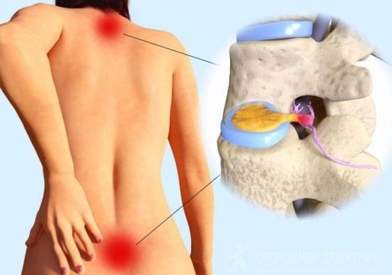 Уникальный метод лечения дегенеративных заболеваний позвоночника — в нашей клинике!
