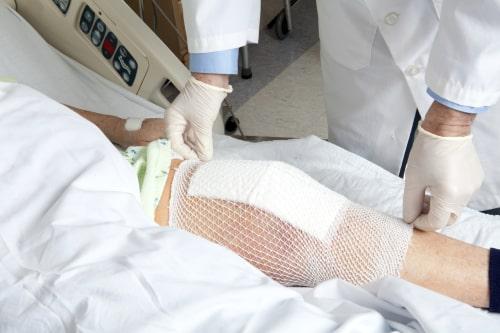 протезирование сустава в Краснодаре