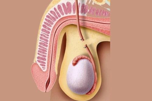 мужская стерилизация в Краснодаре