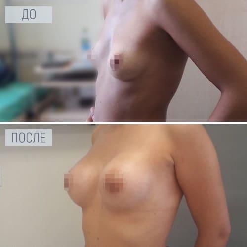 аугментация груди