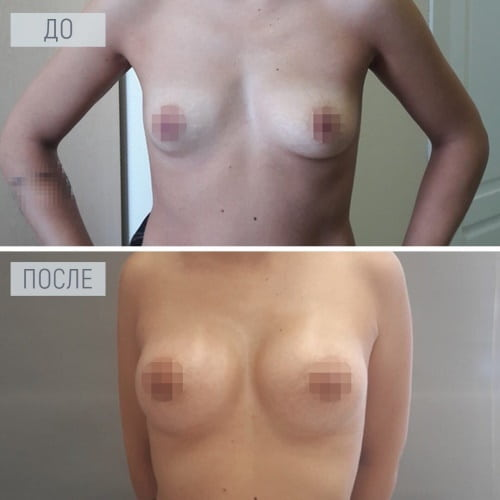 увеличение груди в Краснодаре