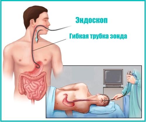 эндоскопия в Краснодаре