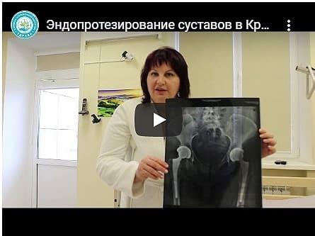 Эндопротезирование суставов в Краснодаре - видео