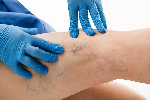 лечение варикоза в Краснодаре