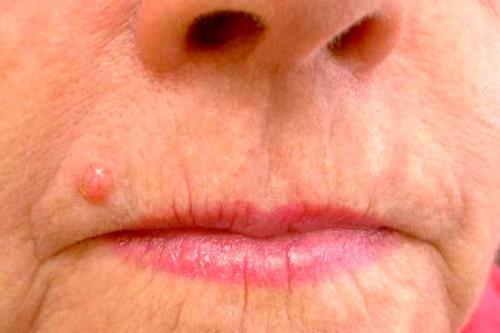 рак кожи (базальная карцинома)