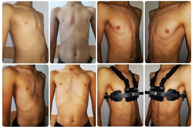 лечение килевидной деформации груди