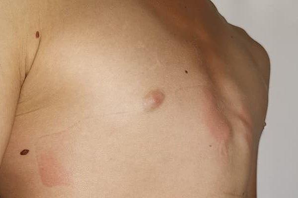 Лечение килевидной деформации грудной клетки  в Краснодаре