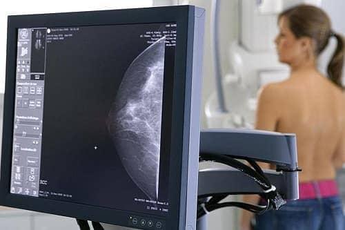 маммограмма в Краснодаре
