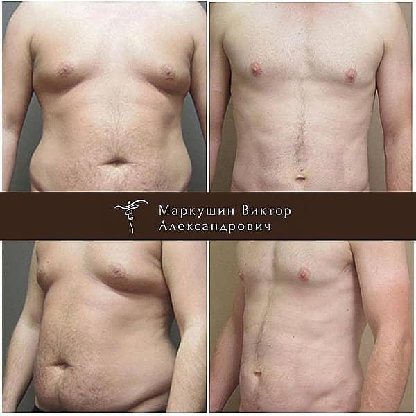 коррекция груди у мужчин