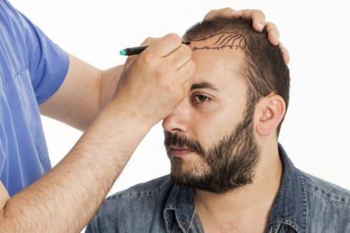 траснплантация волос в Краснодаре