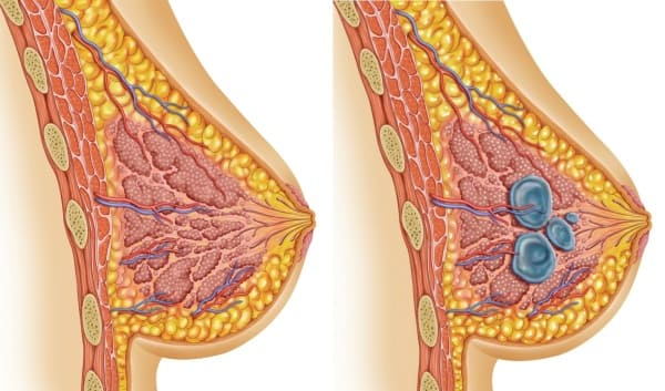 лечение мастопатии в Краснодаре