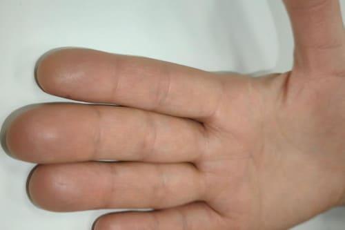 лечение гипергидроза в Краснодаре