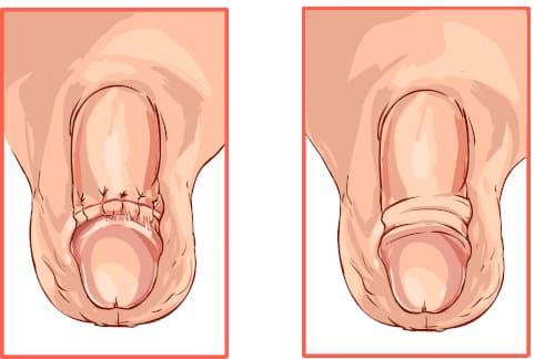 лечение фимоза операция